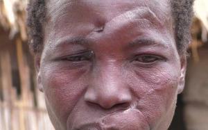 Tanzanie sorcière agression