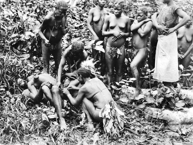 Une excision pratiquée sur une jeune fille. (Crédit photo : Wellcome Images)